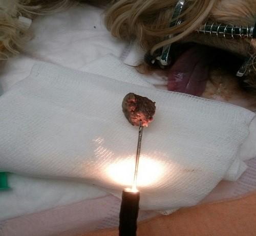 Рис 8. Инородное тело (Кость) извлечено эндоскопом из дистальной части грудного отдела пищевода