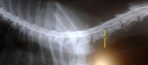 mielografia2